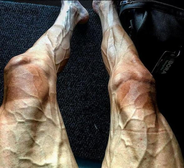 picioarele obosite și slabe tot timpul