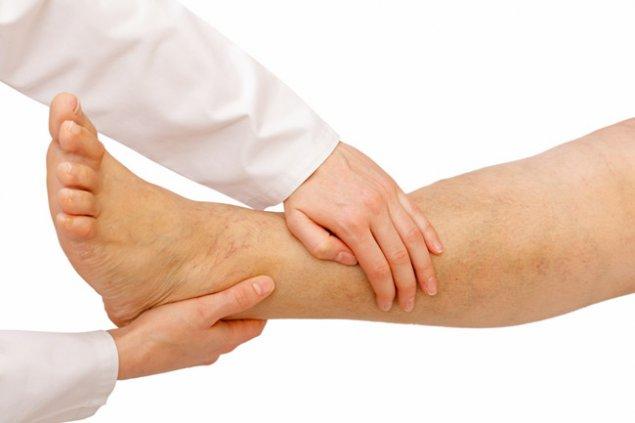 picioarele rănite în timpul frigului